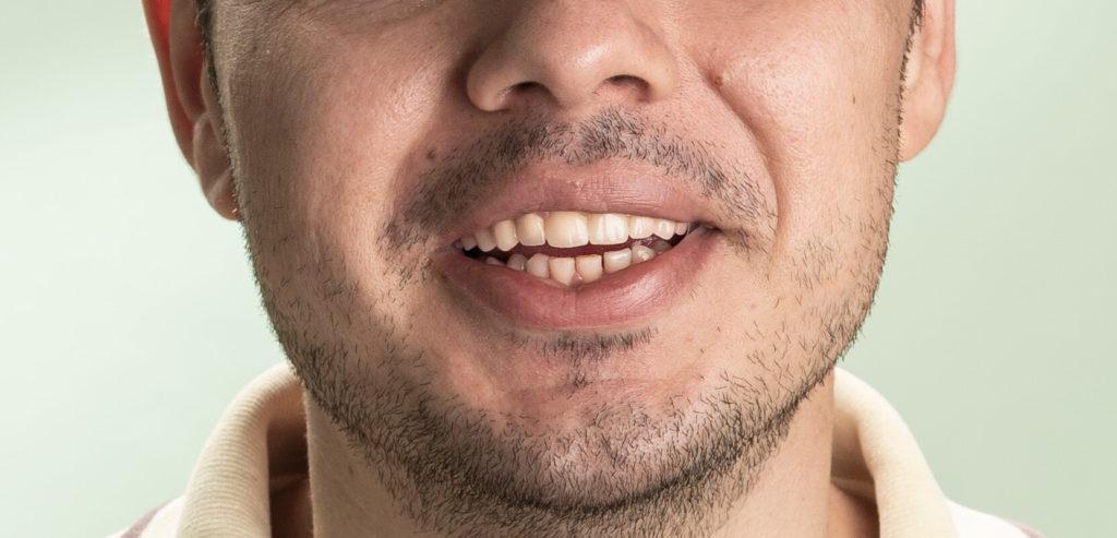 Coroane ceramice semi fizionomice la finalul tratamentul dentar
