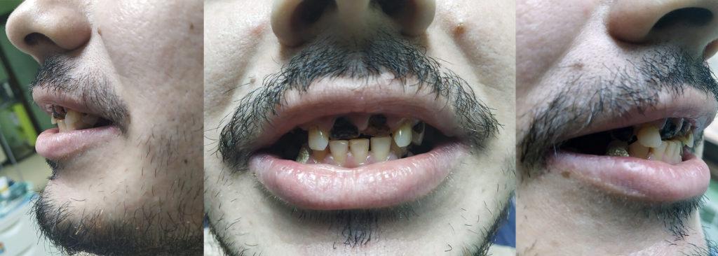 Fotografii realizate înainte de începerea tratamentul dentar