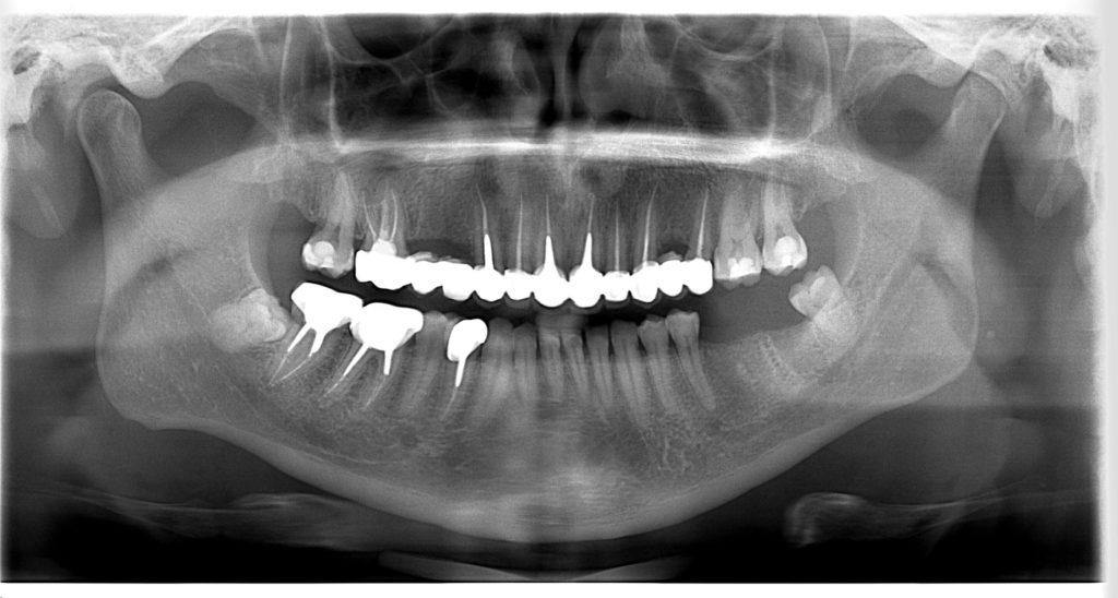 Radiografie de control dupa tratamentul dentar - Ioan Mihai